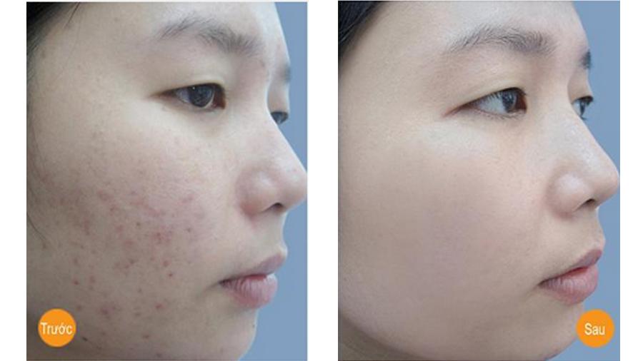 Dùng Vitamin C dưỡng da theo cách này, mụn chi chít khắp mặt dai dẳng cỡ nào cũng trị dứt ảnh 4